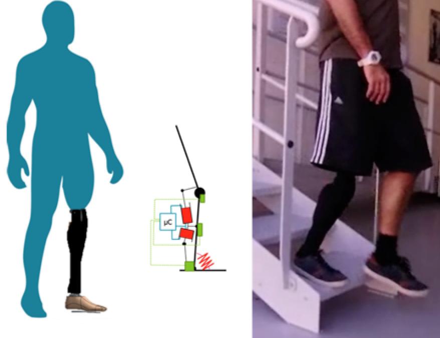AMETRA et PROTEOR accélèrent le développement des prothèses intelligentes